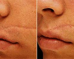 quitar cicatrices de acne en la nariz