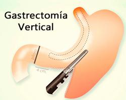 La Gastrectomia
